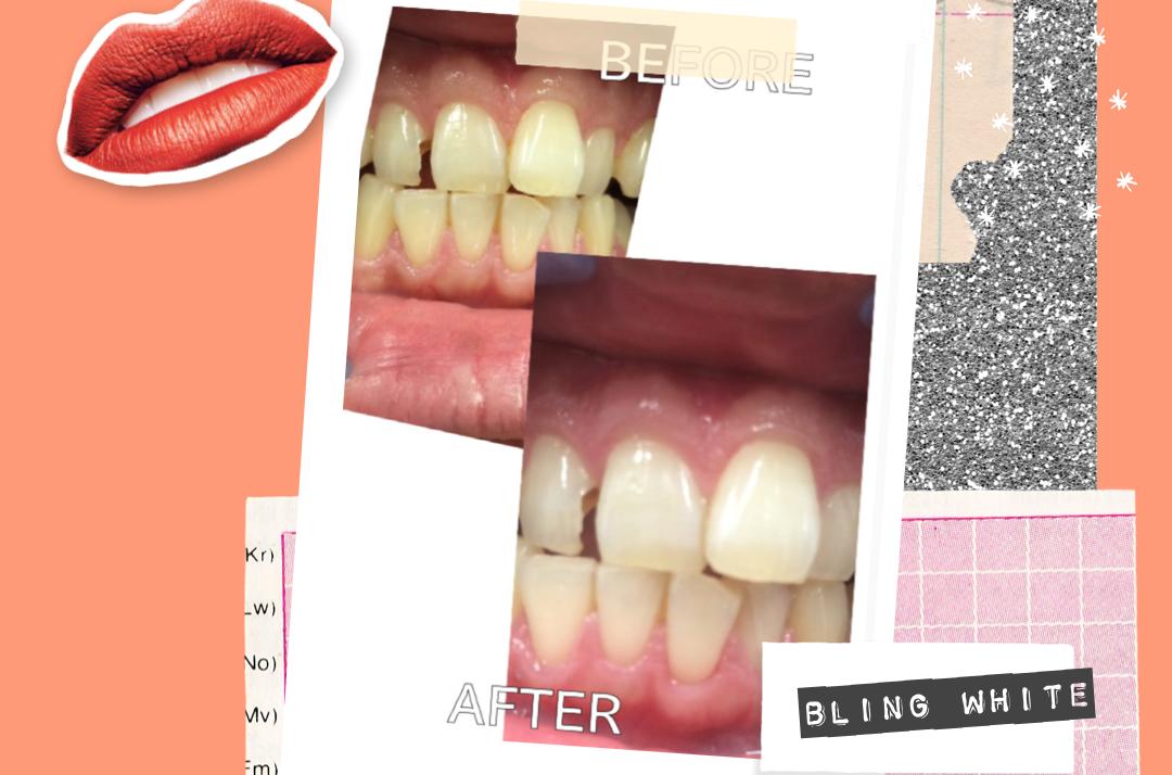セルフホワイトニングって、本当に歯が白くなりますか?